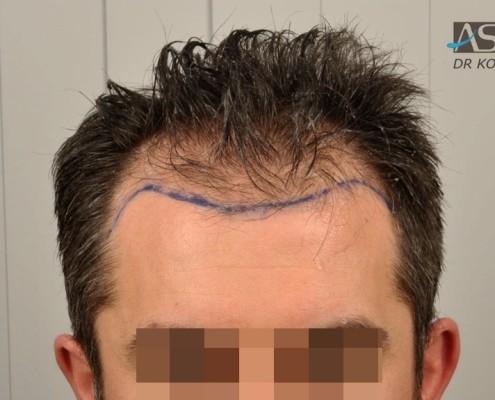 Mezzi per punte di capelli rosa