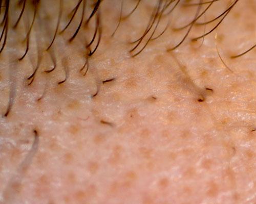 Alopecia Areata, come si presenta?