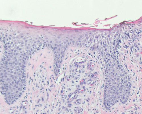 dermatite seborroica come si presenta