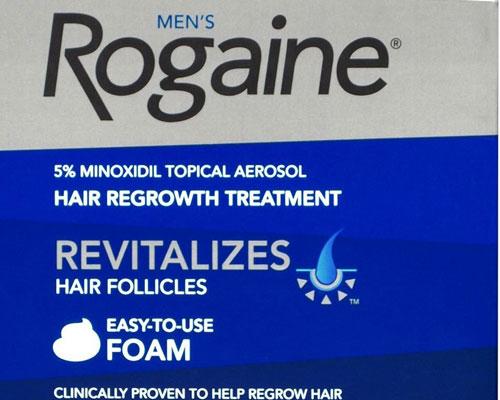 Minoxidil Alopecia