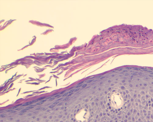 Unguento a eczema secco di un orecchio