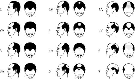 aree alopecia androgenetica