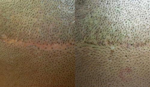 trattamenti-tricopigmentazione-densità