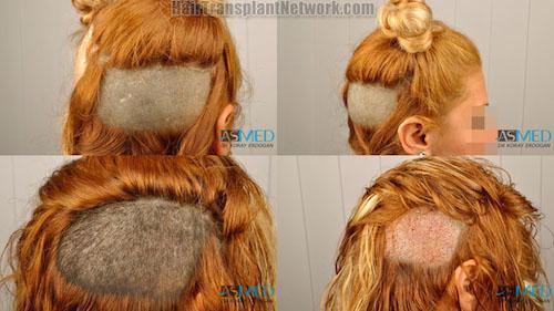 trapianto-di-capelli-nelle-donne