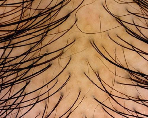 dermatologia dei capelli dermoscopia