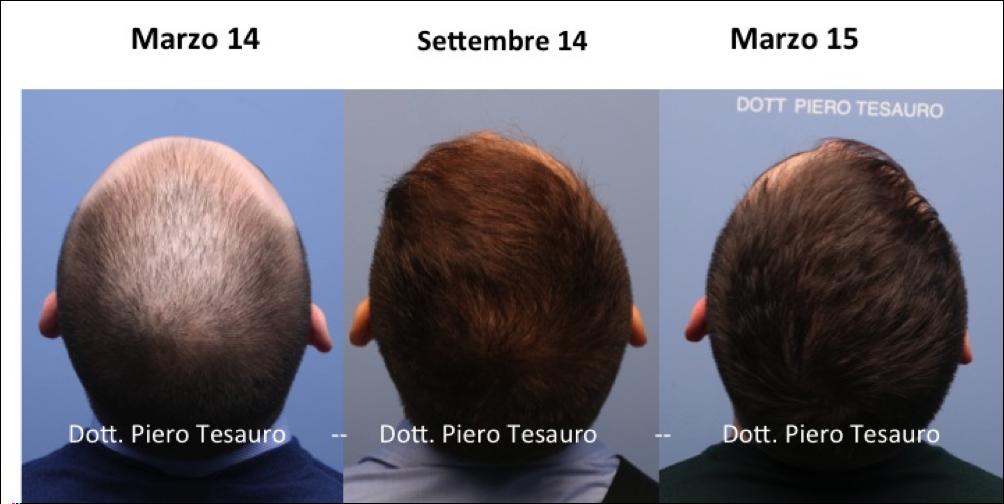 Trapianto capelli donne forum
