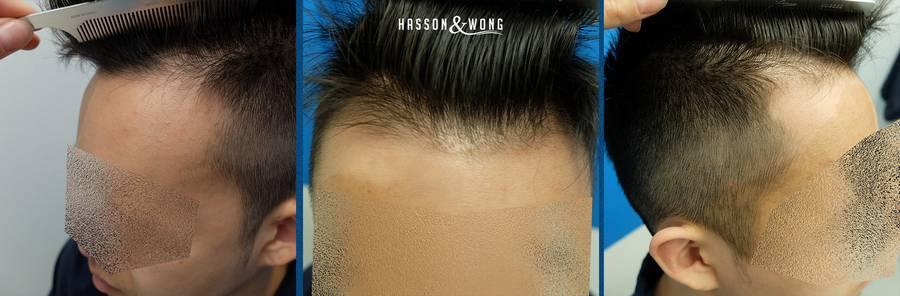 fue-transplant-hassonwong-1