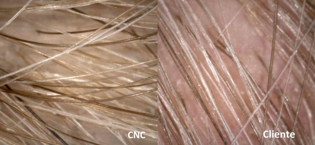 sistema-cnc-dermoscopia