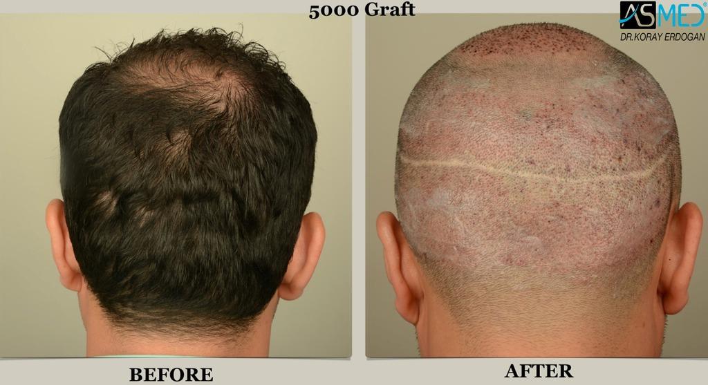 Le maschere che i capelli sono restaurati