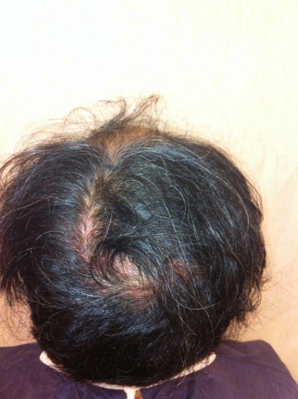 Kerastase specifique prevention el champú de la caída de los cabello las revocaciones