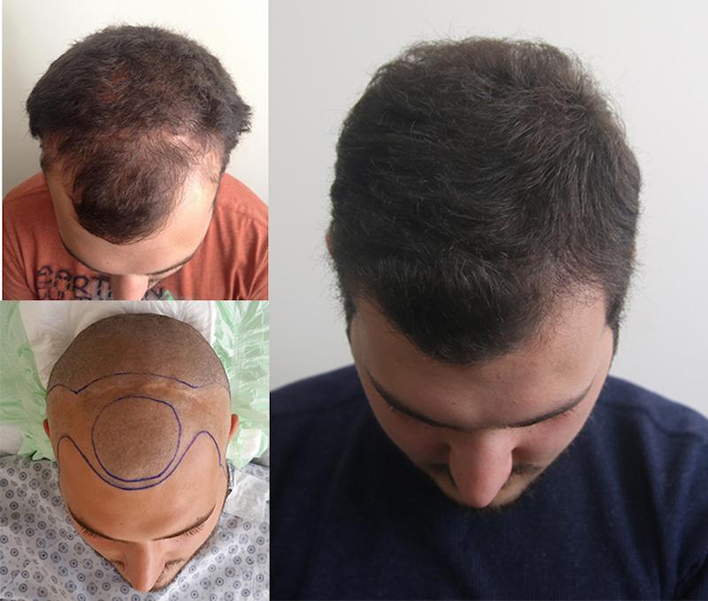 Maschera per keratin schwarzkopf capelli
