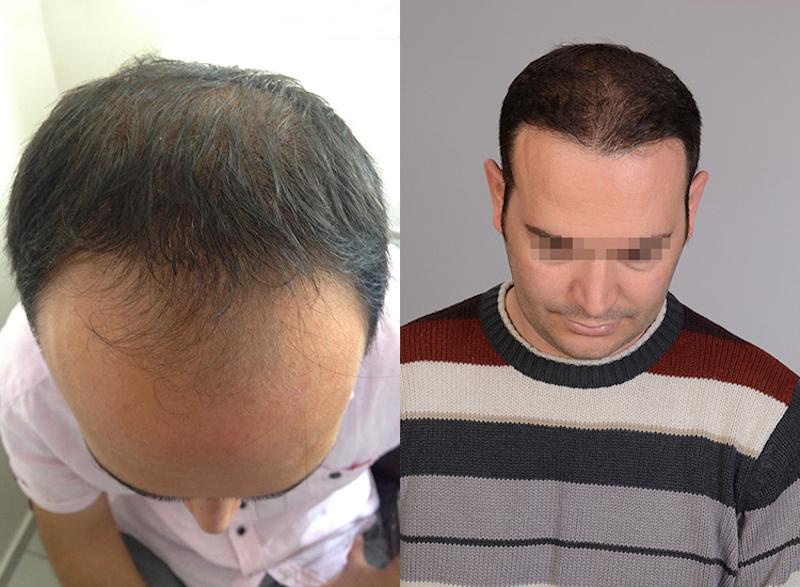 Perdita di capelli a carenza di vitamina C