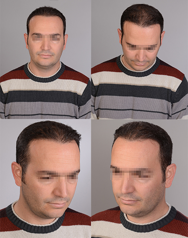 Olio cosmetico per le fini di capelli