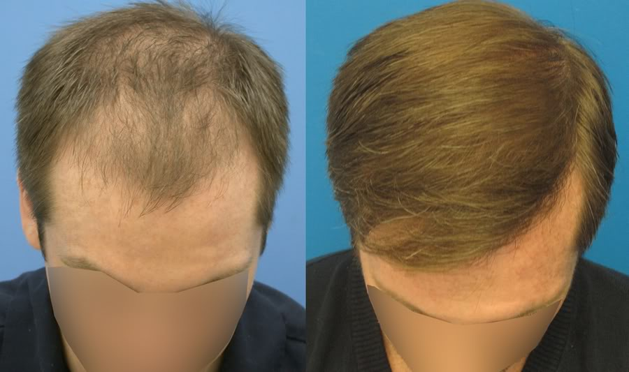 Topical propecia for hair loss