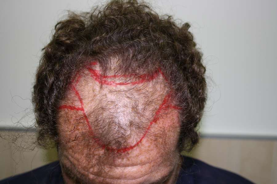 Por que medio de hacer los cabellos pomposo