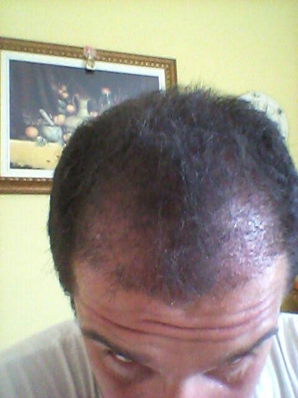 trapianto-di-capelli-serkan-prepost-1