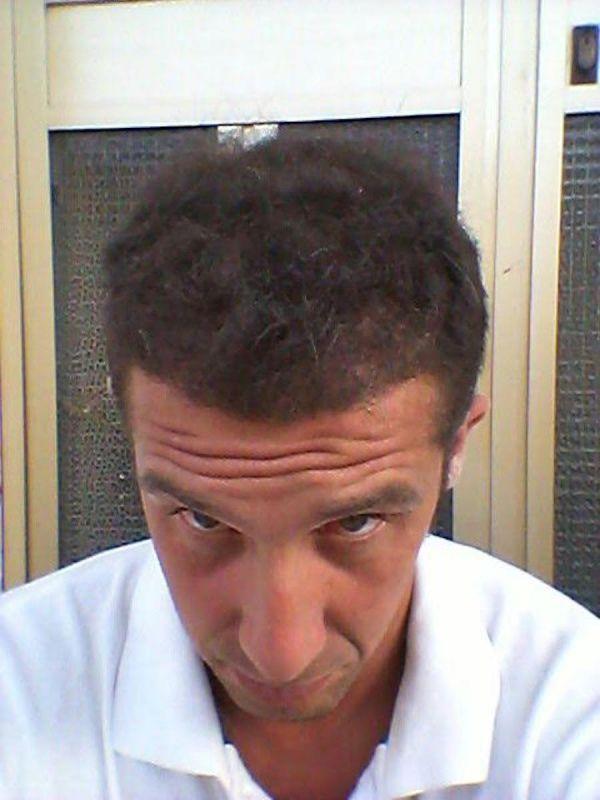 trapianto-di-capelli-serkan-prepost-10