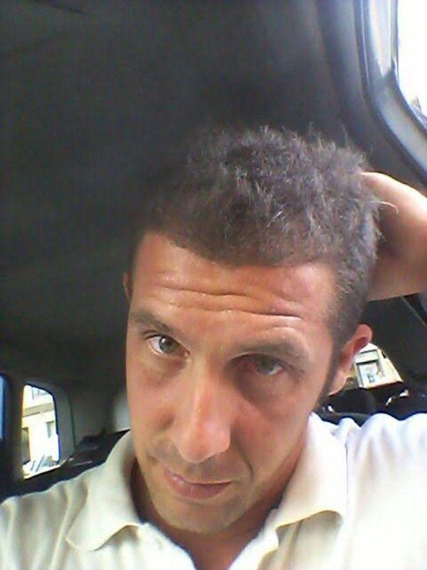 trapianto-di-capelli-serkan-prepost-11