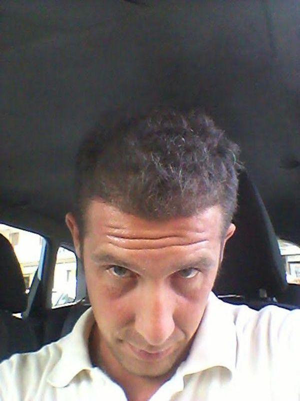 trapianto-di-capelli-serkan-prepost-13