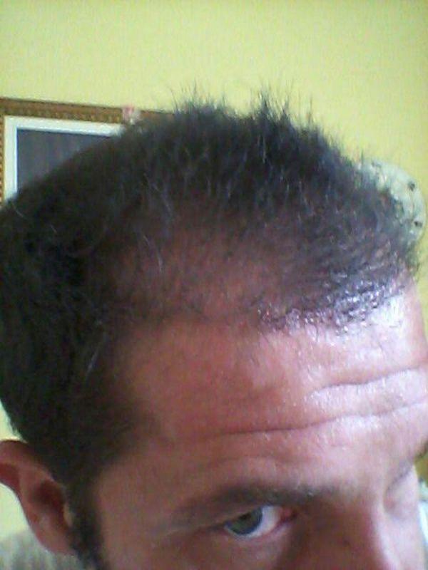 trapianto-di-capelli-serkan-prepost-2