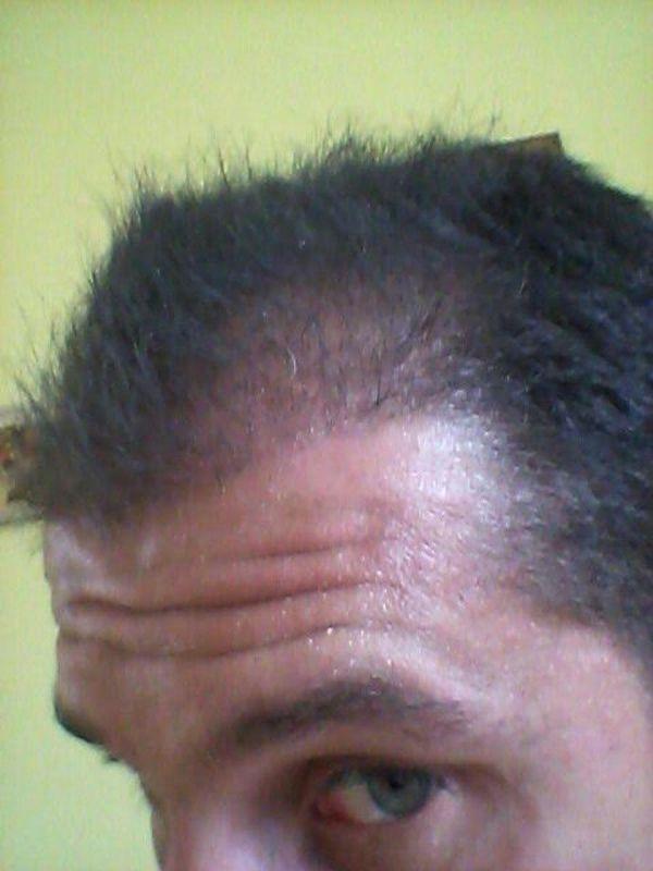 trapianto-di-capelli-serkan-prepost-3