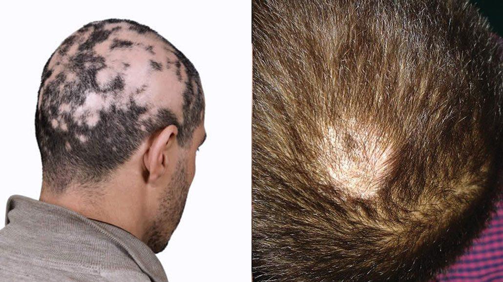 Alopecie infiammatorie post trapianto
