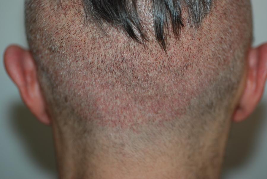 trapianto capelli senza rasatura
