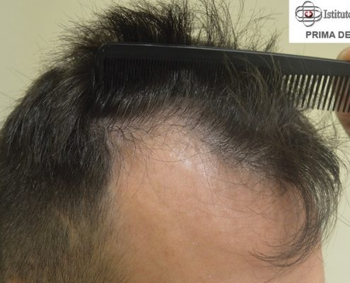 La ricetta di una maschera per capelli a partire da fini di spacco