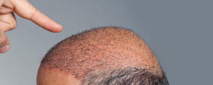 trapianto capelli non ricrescono